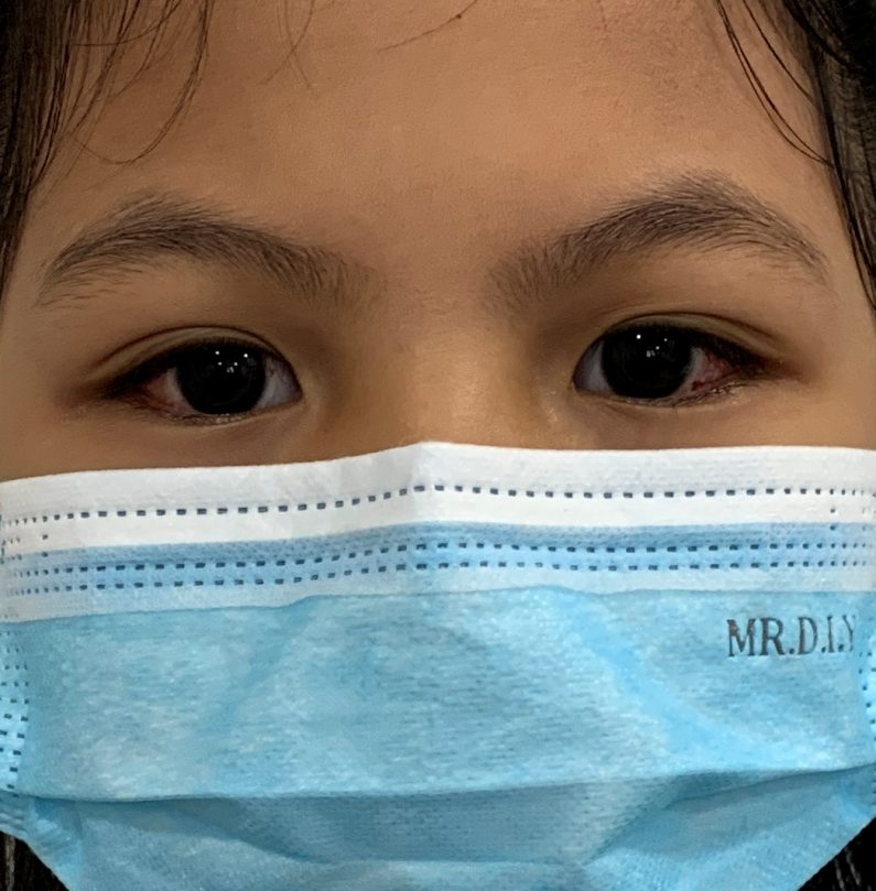 Patient Mia eyesight improvements after the squint surgery